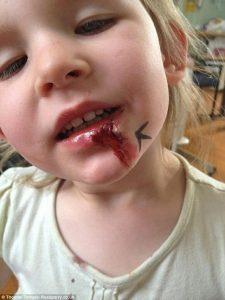 Menina mordeu os lábios, mas não sentiu dor